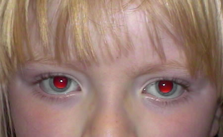 Image of an individual with ocular albinism
