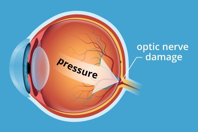 High Eye Pressure Image